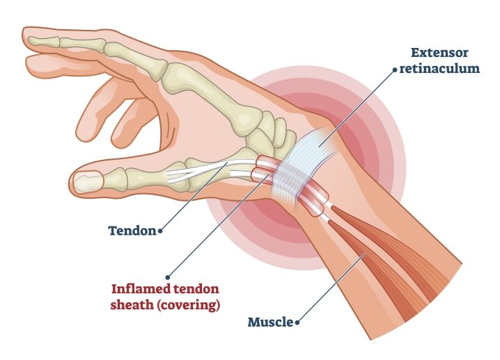 Steroid injection wrist tendonitis dragon quest 2 andriod best place to get gold